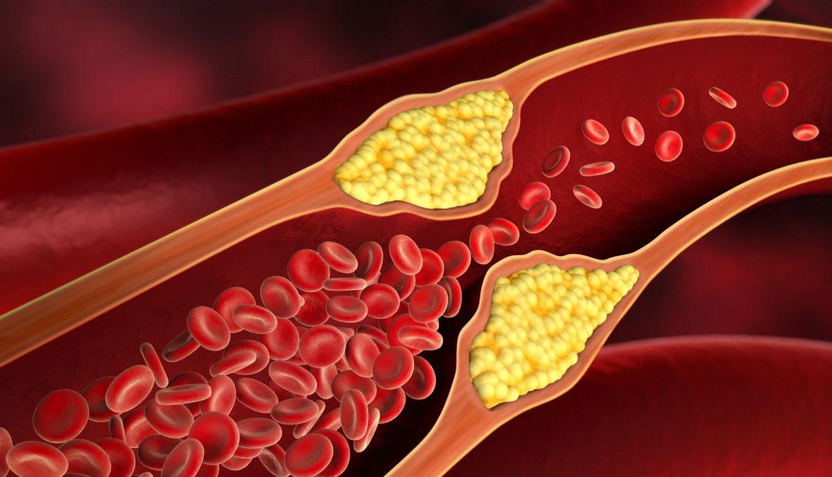Leqvio: Newest Drug Against 'Very Bad' Cholesterol | BioPharma Media