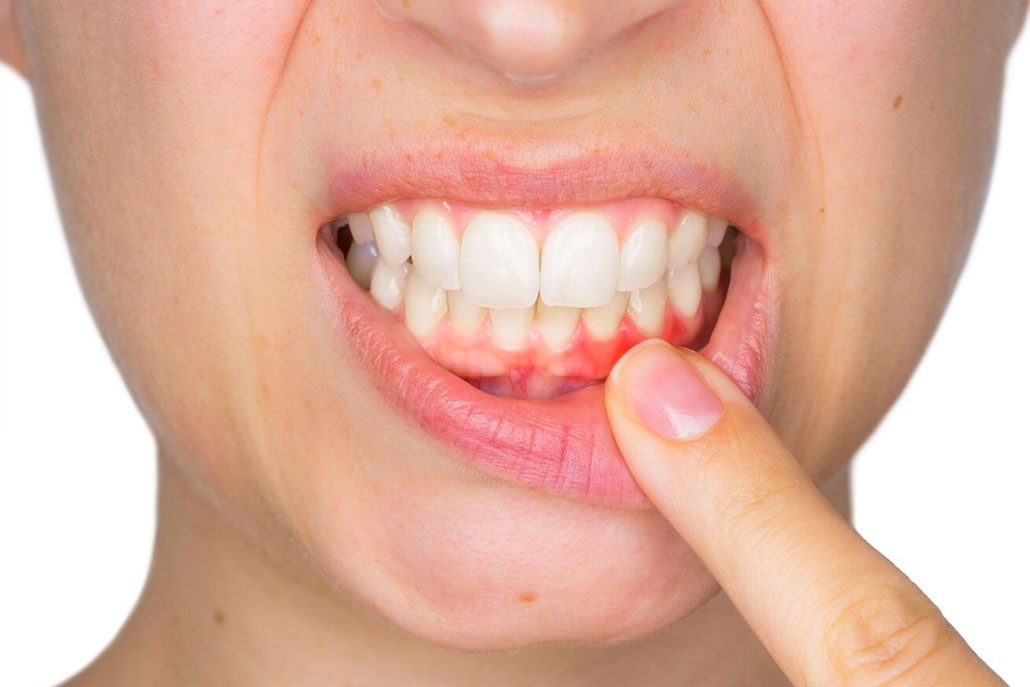Oral Health and Other Health Issues, Is there a Connection? East Van Dentist