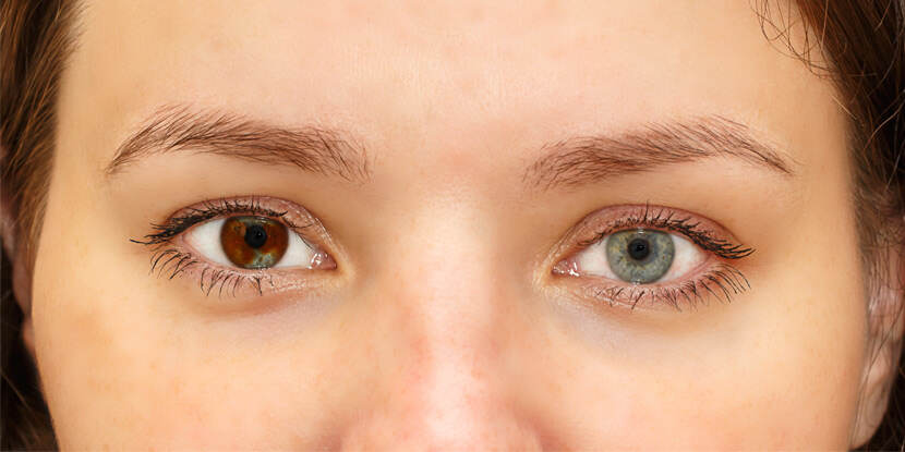 Why Are My Eyes Changing Color? - American Academy of Ophthalmology
