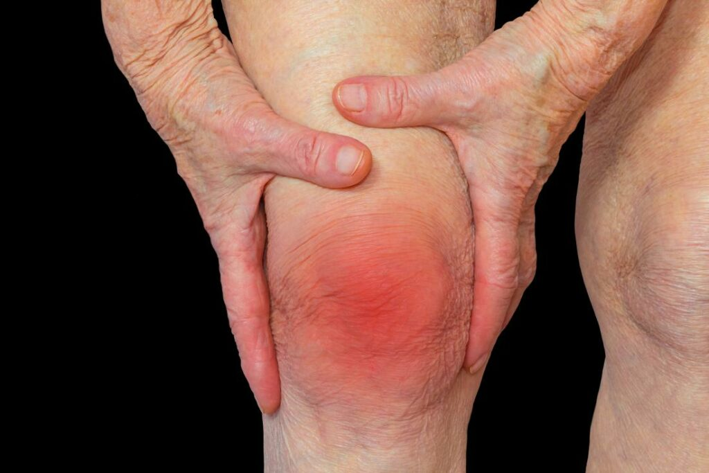rheumatoid-arthritis-knee.